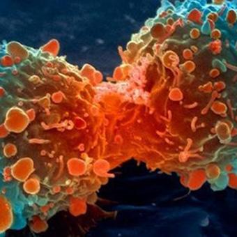antineoplastici